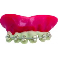 Dentier rigide avec pâte - dents argentées